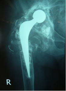 loose cup and stem revised with larger metal components and bone graft